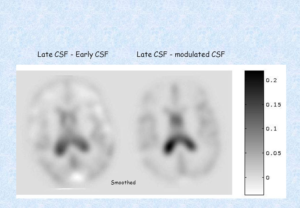 Late CSF - Early CSF Late CSF - modulated CSF Smoothed