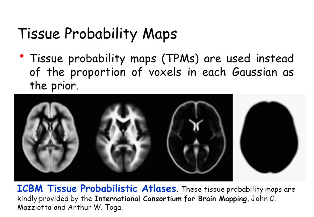 Tissue Probability Maps Tissue probability maps (TPMs) are used instead of the proportion of voxels in each Gaussian as the prior. ICBM Tissue Probabi