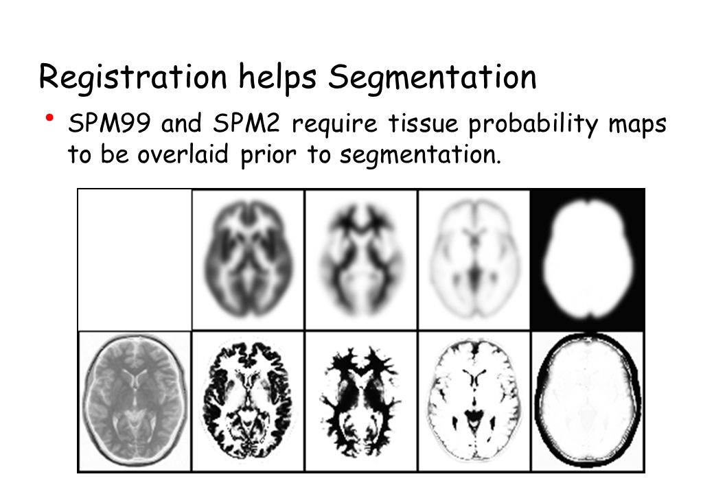 Segmentation helps Bias Correction Bias correction should not eliminate differences between tissue classes.