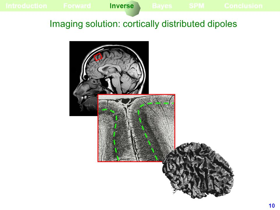 10 BayesForward Introduction Imaging solution: cortically distributed dipoles InverseSPMConclusion