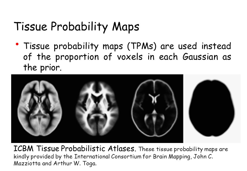 Tissue Probability Maps Tissue probability maps (TPMs) are used instead of the proportion of voxels in each Gaussian as the prior.