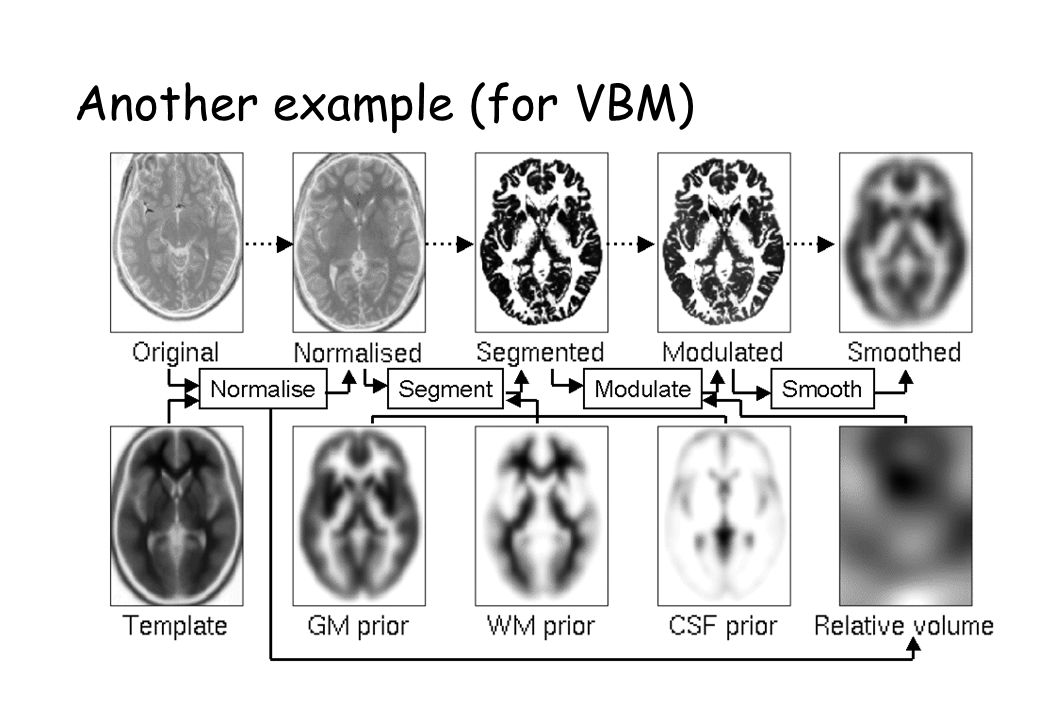 Bias Correction Informs Registration MRI images are corrupted by a smooth intensity non-uniformity (bias).