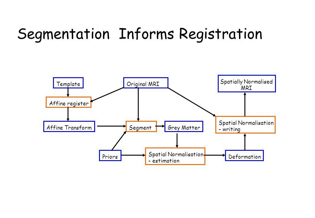 Segmentation Informs Registration Original MRITemplate Grey MatterSegment Affine register PriorsDeformation Affine Transform Spatial Normalisation - estimation Spatial Normalisation - writing Spatially Normalised MRI