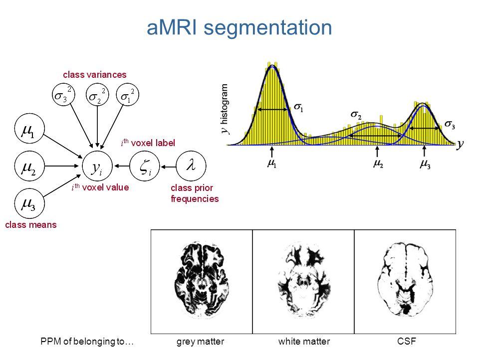 aMRI segmentation grey matterPPM of belonging to … CSFwhite matter