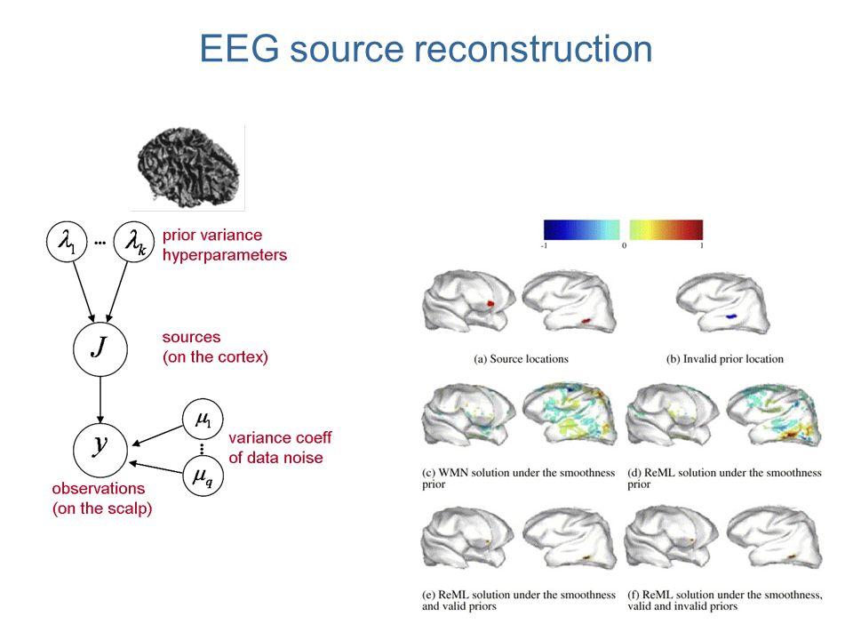 EEG source reconstruction