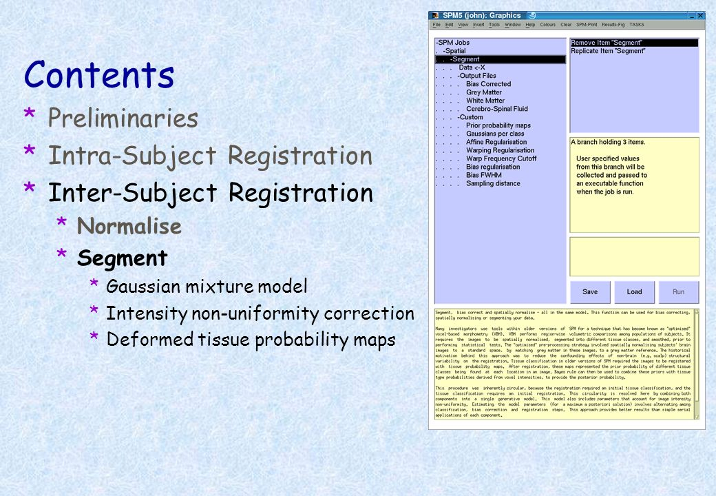 Template image Affine registration. ( 2 = 472.1) Non-linear registration without regularisation. ( 2 = 287.3) Non-linear registration using regularisa