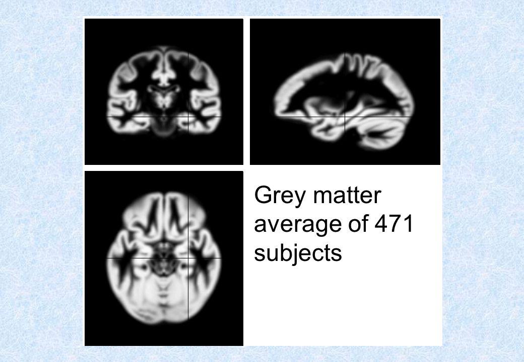 Grey matter average of 452 subjects – affine