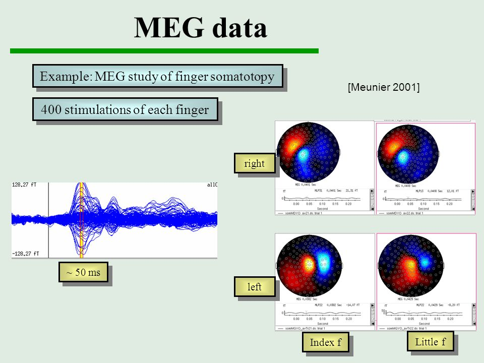 MEG data ~ 50 ms right left Index f Little f Example: MEG study of finger somatotopy 400 stimulations of each finger [Meunier 2001]
