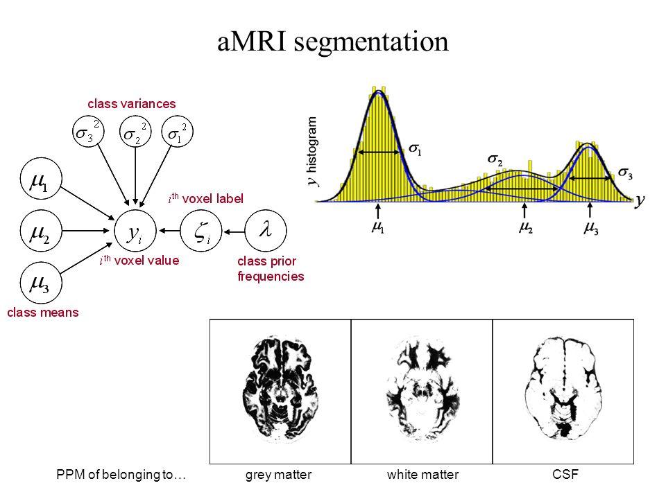 grey matterPPM of belonging to … CSFwhite matter aMRI segmentation