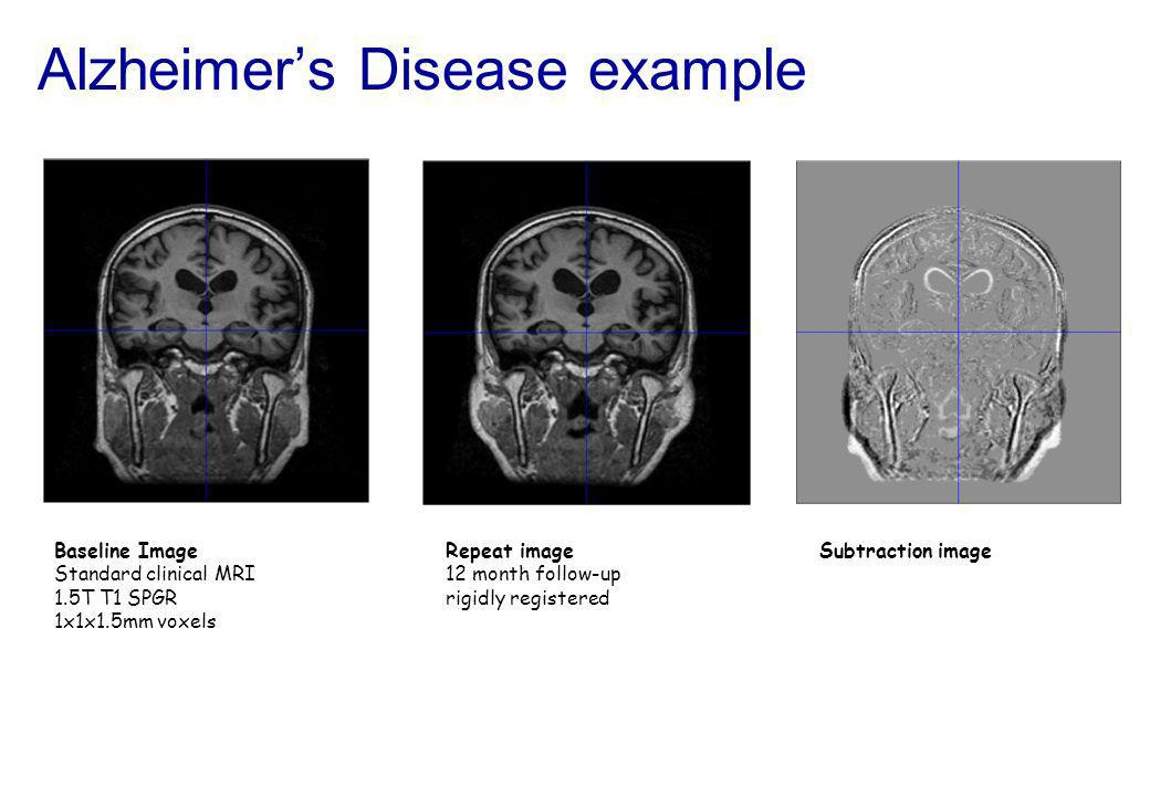 Alzheimers Disease example Baseline Image Standard clinical MRI 1.5T T1 SPGR 1x1x1.5mm voxels Repeat image 12 month follow-up rigidly registered Subtr
