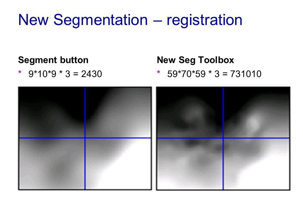 New Segmentation – registration Segment button *9*10*9 * 3 = 2430 New Seg Toolbox *59*70*59 * 3 = 731010