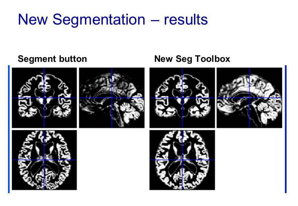 New Segmentation – results Segment buttonNew Seg Toolbox