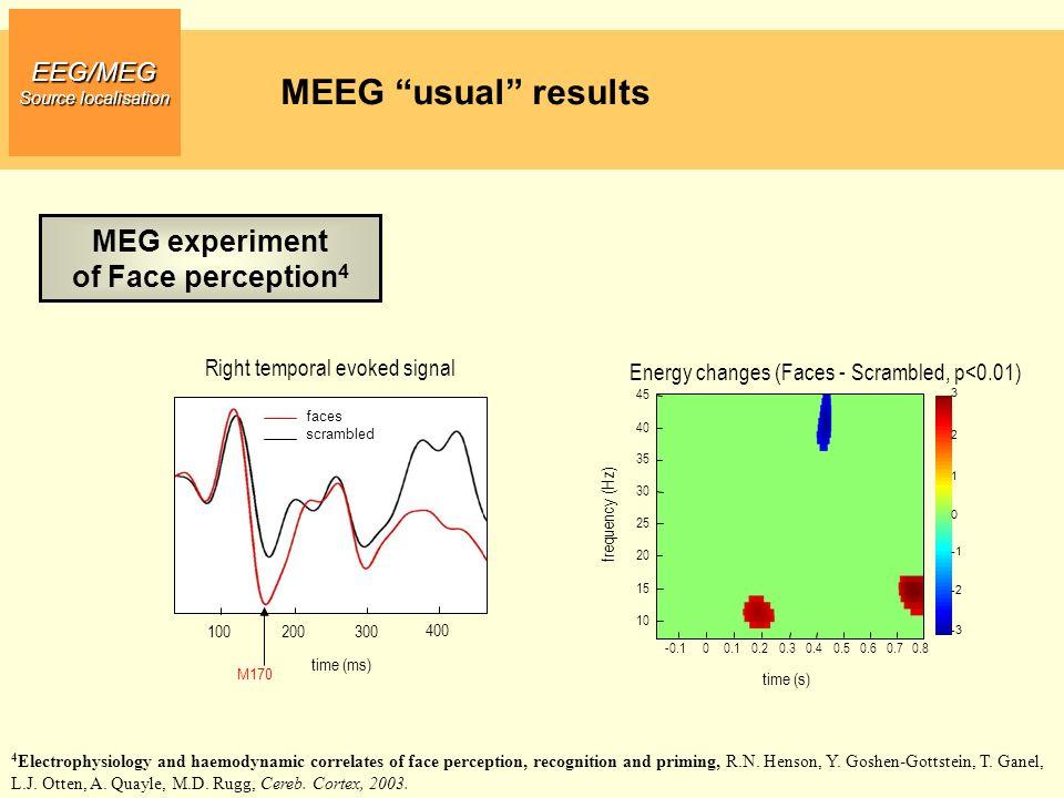 EEG/MEG Source localisation From Sensor to MRI space MRI derived meshes MEG Full setup EEG Rigid Transformation HeadShape Surface Matching + HeadShape Forward model: coregistration