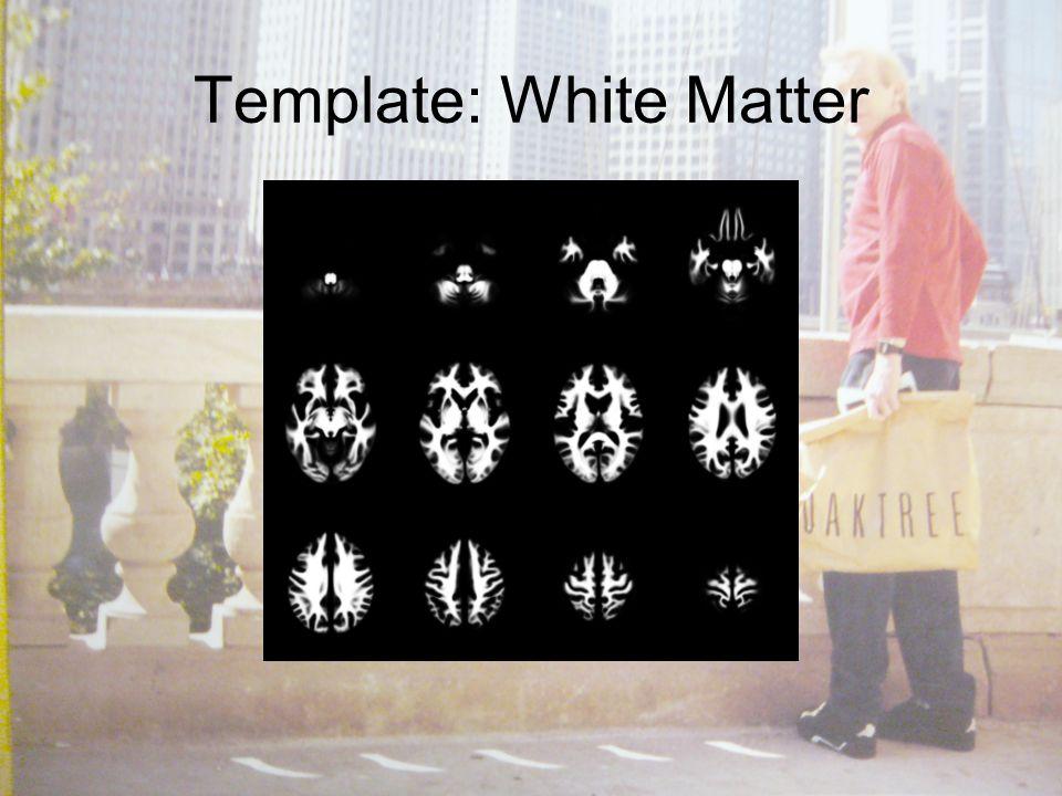 Template: White Matter