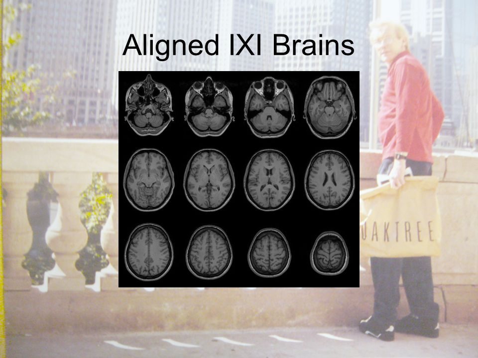 Aligned IXI Brains