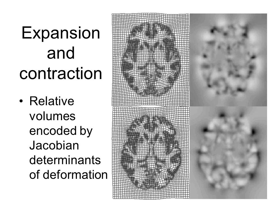 Expansion and contraction Relative volumes encoded by Jacobian determinants of deformation