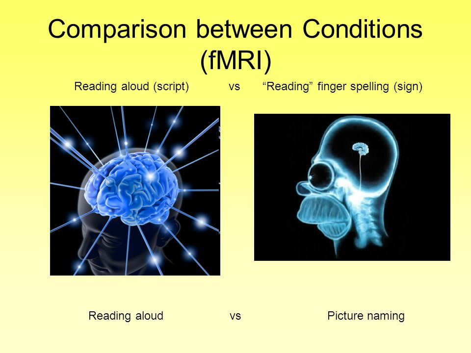 Comparison between Conditions (fMRI) Reading aloud vs Picture naming Reading aloud (script) vsReading finger spelling (sign)