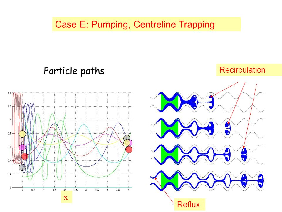 x Case E: Pumping, Centreline Trapping Recirculation Reflux Particle paths