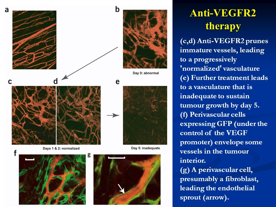 Anti-VEGFR2 therapy (c,d) Anti-VEGFR2 prunes immature vessels, leading to a progressively 'normalized' vasculature (e) Further treatment leads to a va