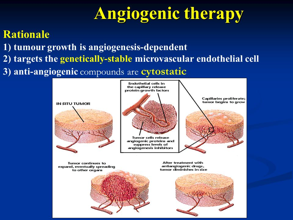 Angiogenic therapy Rationale 1) tumour growth is angiogenesis-dependent 2) targets the genetically-stable microvascular endothelial cell 3) anti-angio