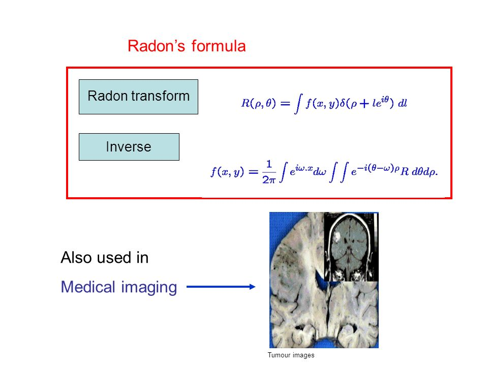 Radon transform Inverse Radons formula Also used in Medical imaging Tumour images