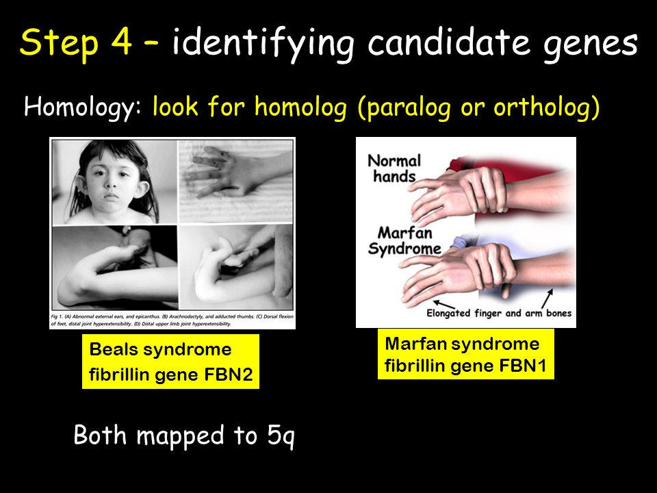 Step 4 – identifying candidate genes Homology: look for homolog (paralog or ortholog) Both mapped to 5q Beals syndrome fibrillin gene FBN2 Marfan syndrome fibrillin gene FBN1