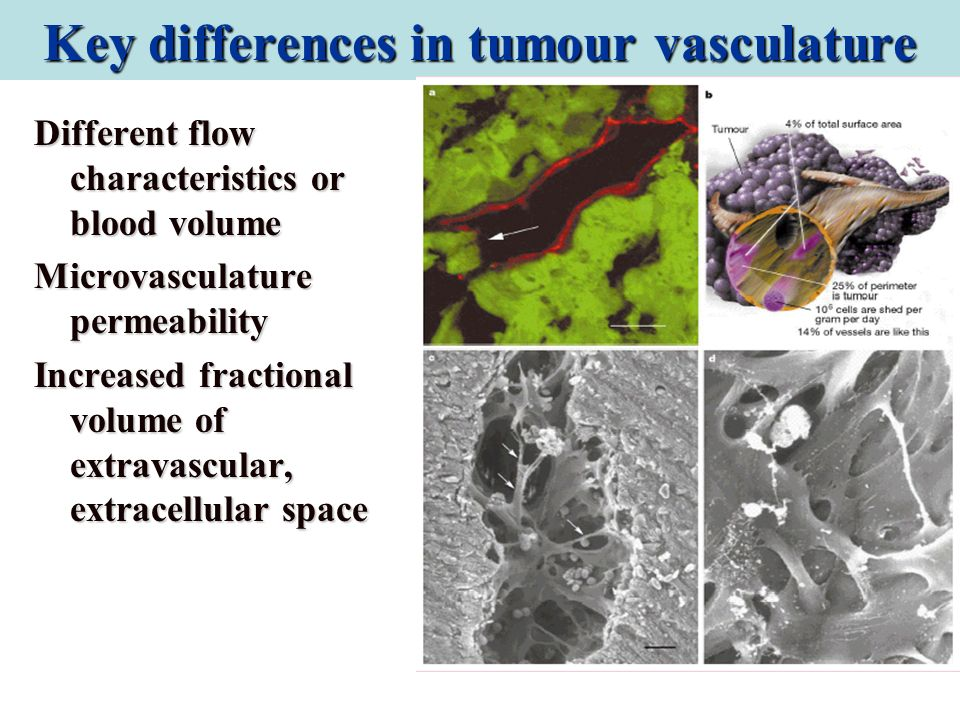 Key differences in tumour vasculature Different flow characteristics or blood volume Microvasculature permeability Increased fractional volume of extr