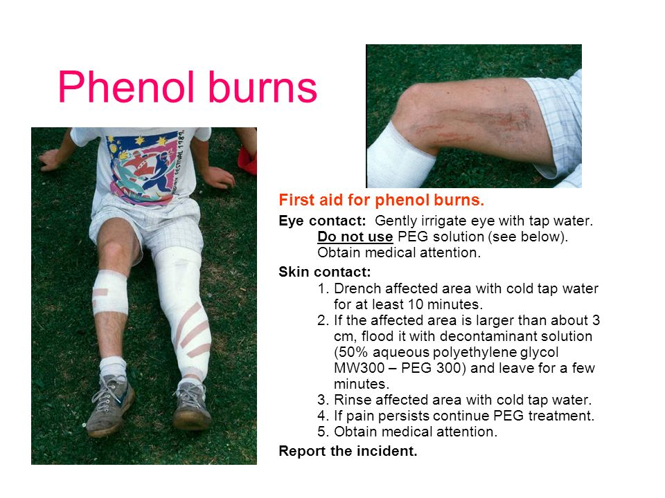 Phenol burns First aid for phenol burns. Eye contact: Gently irrigate eye with tap water.
