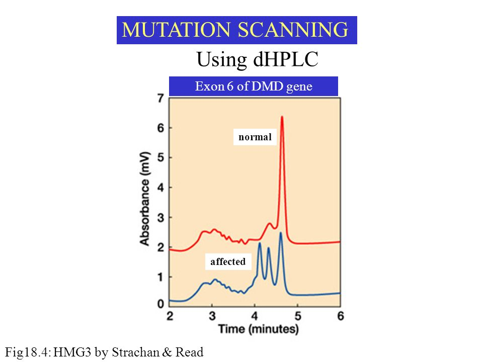MUTATION SCANNING Using dHPLC Exon 6 of DMD gene normal affected Fig18.4: HMG3 by Strachan & Read