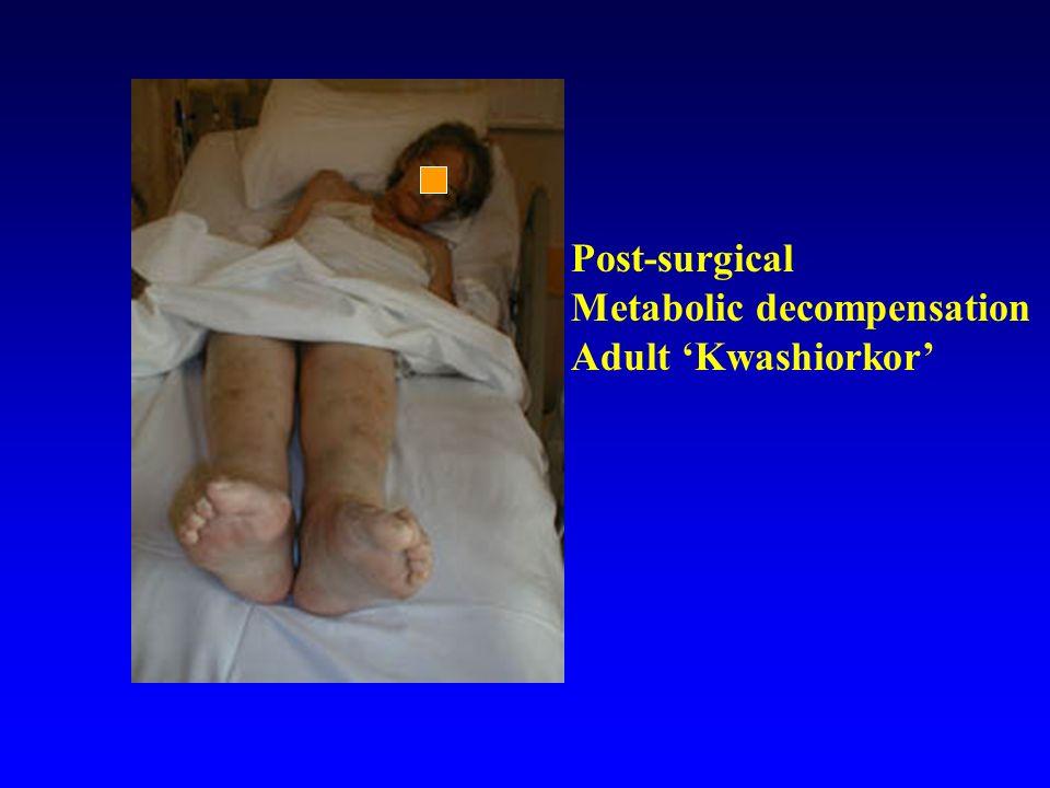 Post-surgical Metabolic decompensation Adult Kwashiorkor