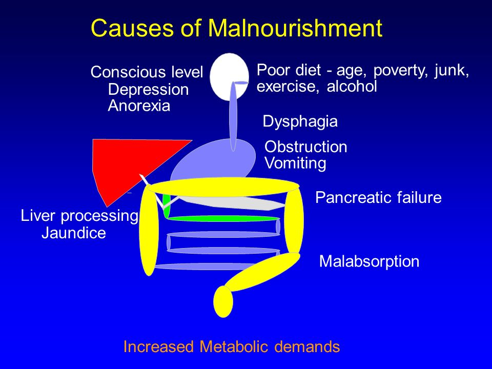 Effects of Undernutrition Immunity – Increased risk of infection Hypothermia Impaired gut integrity and immunity Renal function - loss of ability to excrete Na & H2O Decreased Cardiac output Ventilation - loss of muscle & hypoxic responses Psychology – depression & apathy Anorexia .
