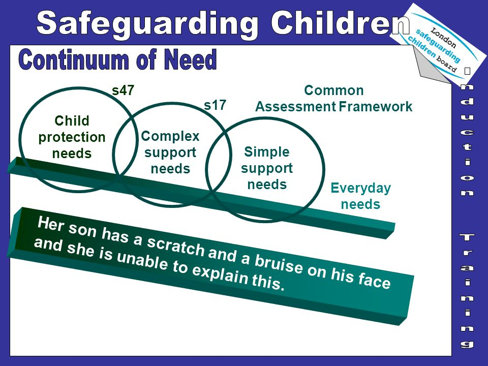 Her son has a scratch and a bruise on his face and she is unable to explain this. Everyday needs Simple support needs Child protection needs s47 Compl