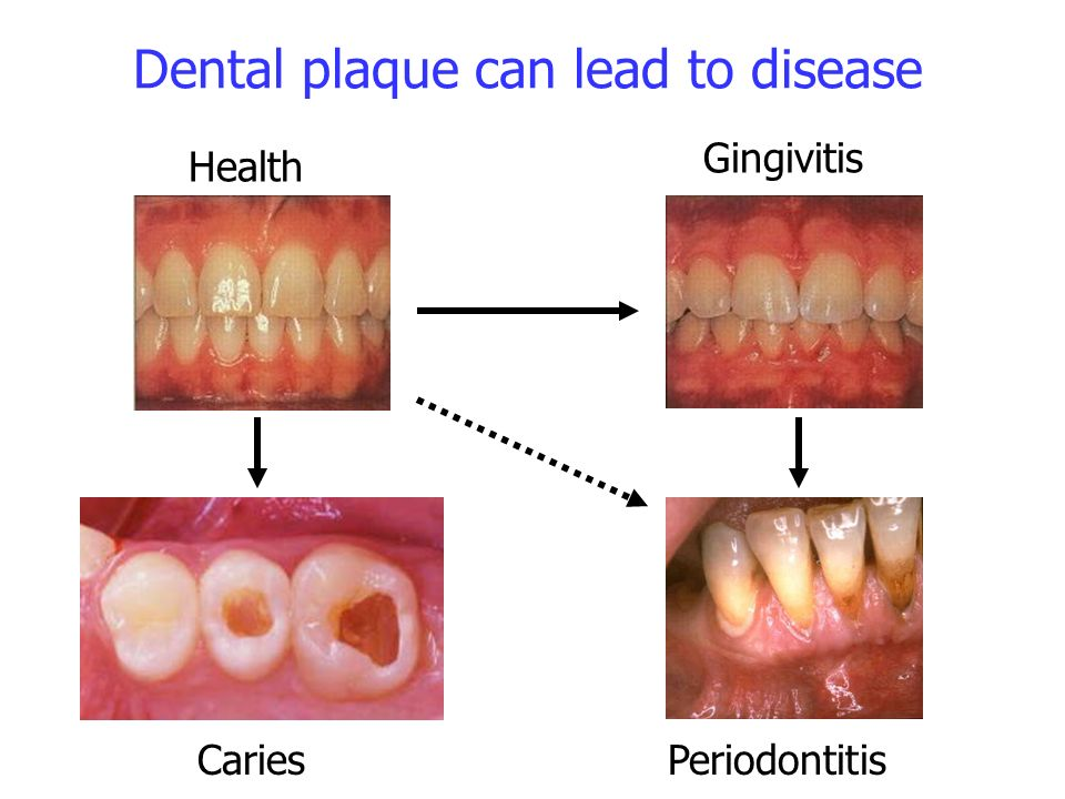 Dental plaque can lead to disease Caries Health Gingivitis Periodontitis