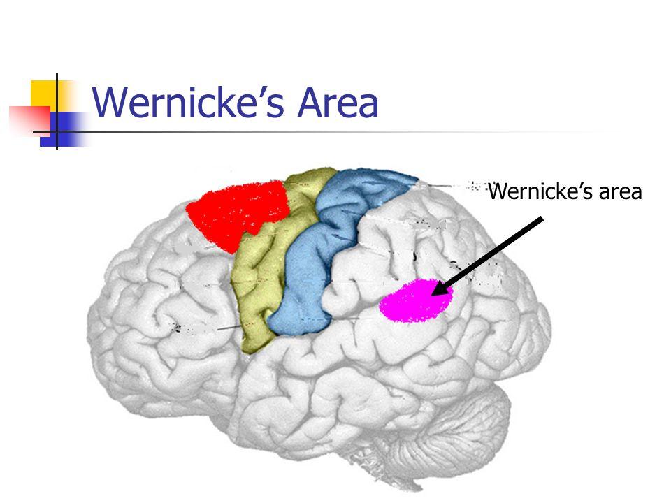 Wernickes Area Wernickes area