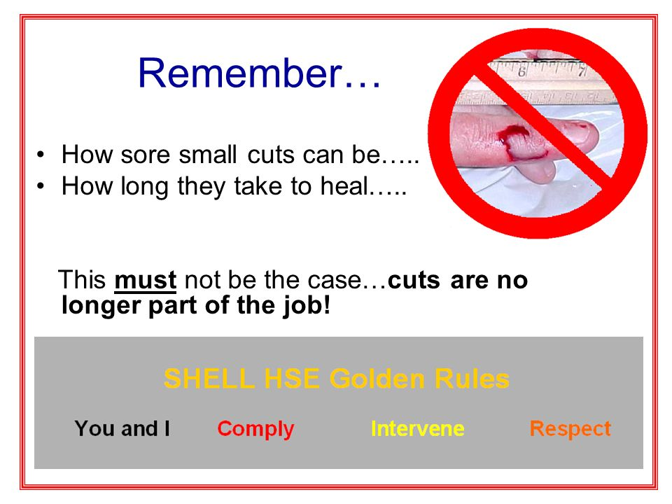 Remember… How sore small cuts can be….. How long they take to heal….. This must not be the case…cuts are no longer part of the job!