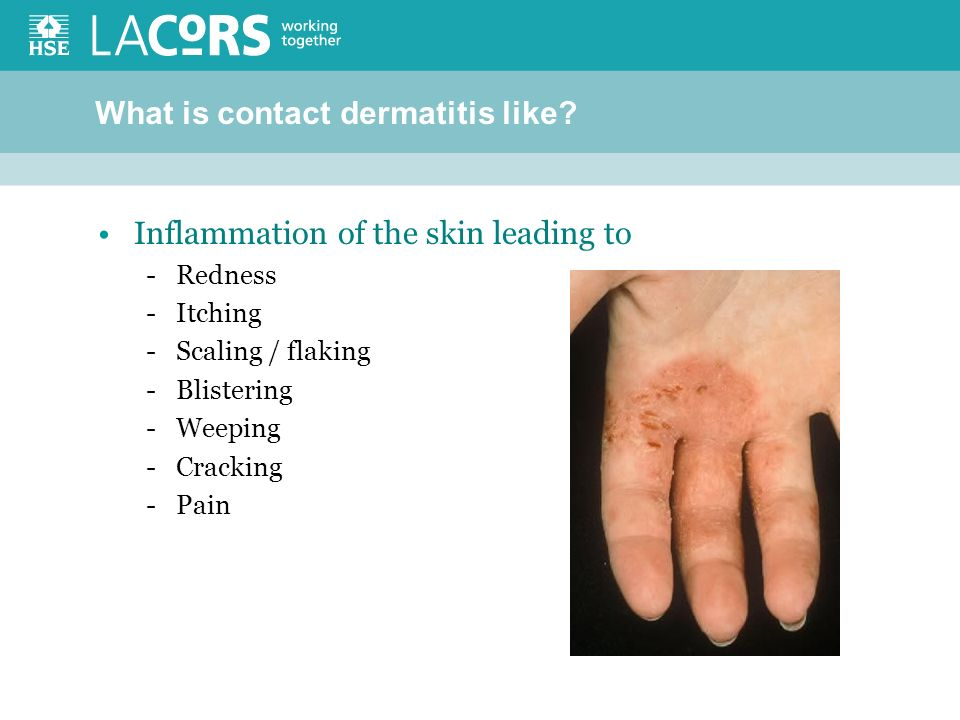 What is contact dermatitis like.