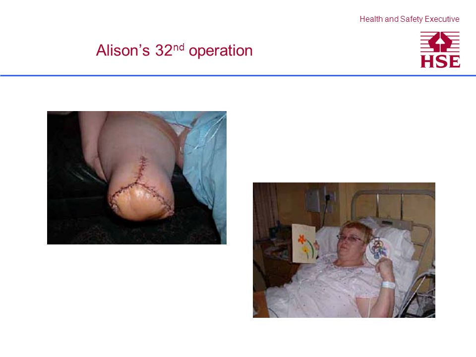 Health and Safety Executive Alisons 32 nd operation