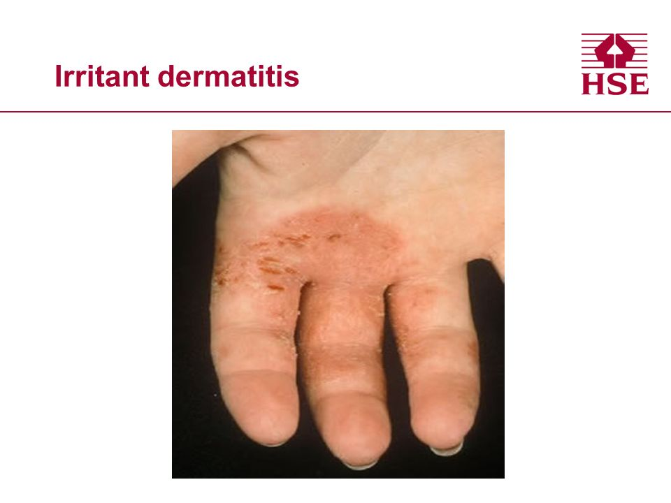Irritant dermatitis
