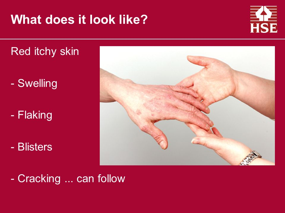 Red itchy skin - Swelling - Flaking - Blisters - Cracking... can follow What does it look like?
