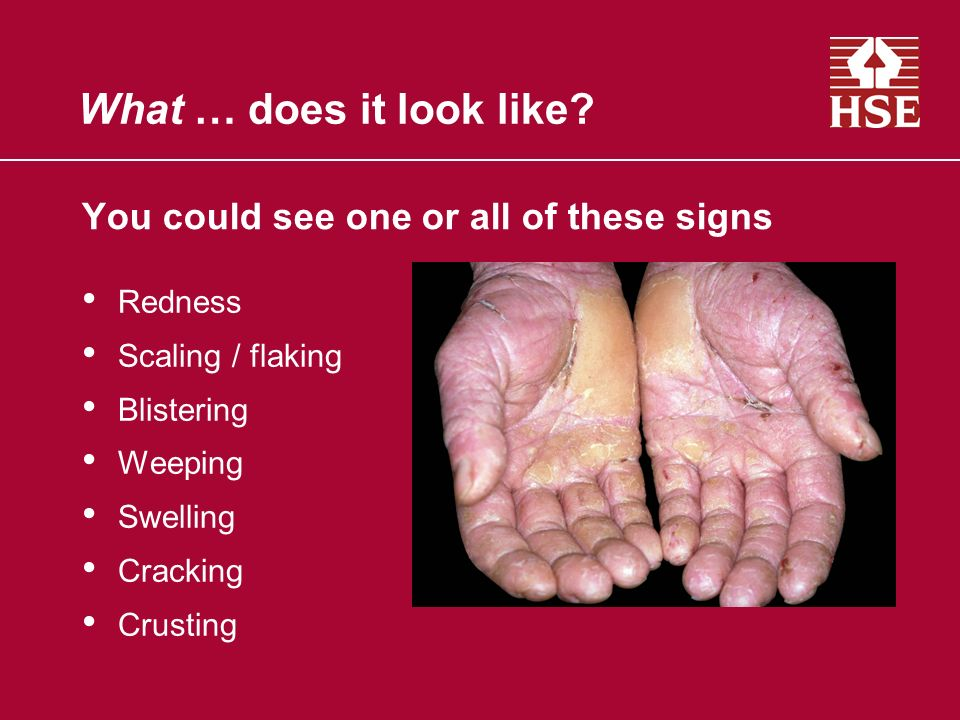 You could see one or all of these signs Redness Scaling / flaking Blistering Weeping Swelling Cracking Crusting What … does it look like?
