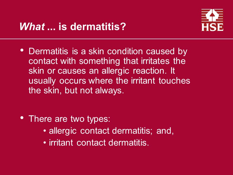 What... is dermatitis? Dermatitis is a skin condition caused by contact with something that irritates the skin or causes an allergic reaction. It usua