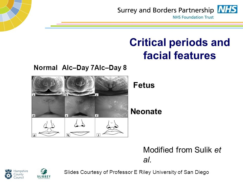 Critical periods and facial features Modified from Sulik et al. NormalAlc–Day 7Alc–Day 8 Fetus Neonate Slides Courtesy of Professor E Riley University