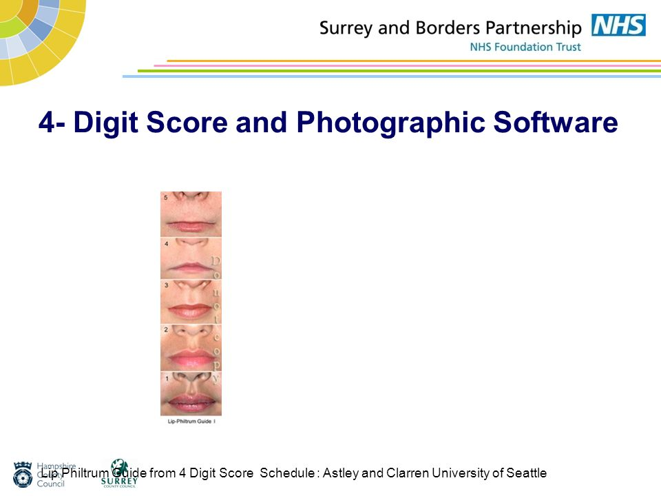 4- Digit Score and Photographic Software Lip Philtrum Guide from 4 Digit Score Schedule : Astley and Clarren University of Seattle