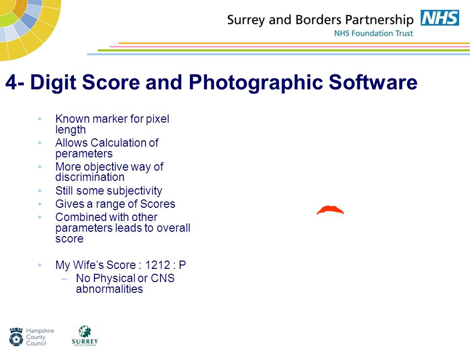 4- Digit Score and Photographic Software Known marker for pixel length Allows Calculation of perameters More objective way of discrimination Still som