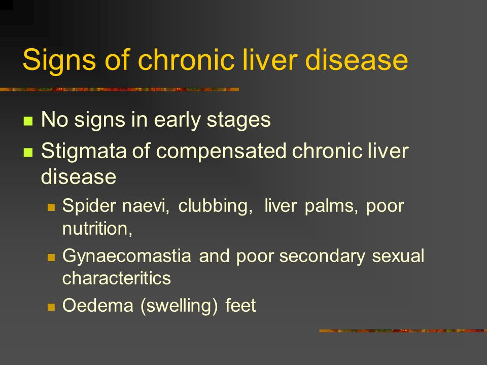 Signs of chronic liver disease No signs in early stages Stigmata of compensated chronic liver disease Spider naevi, clubbing, liver palms, poor nutrit