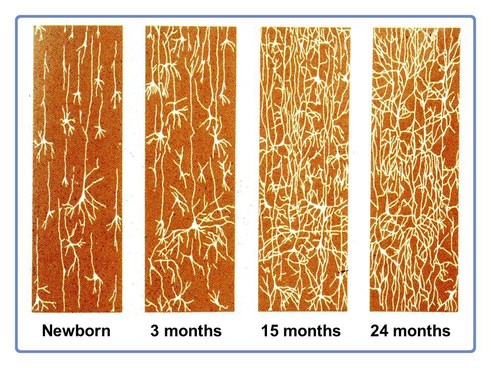Newborn 3 months15 months24 months
