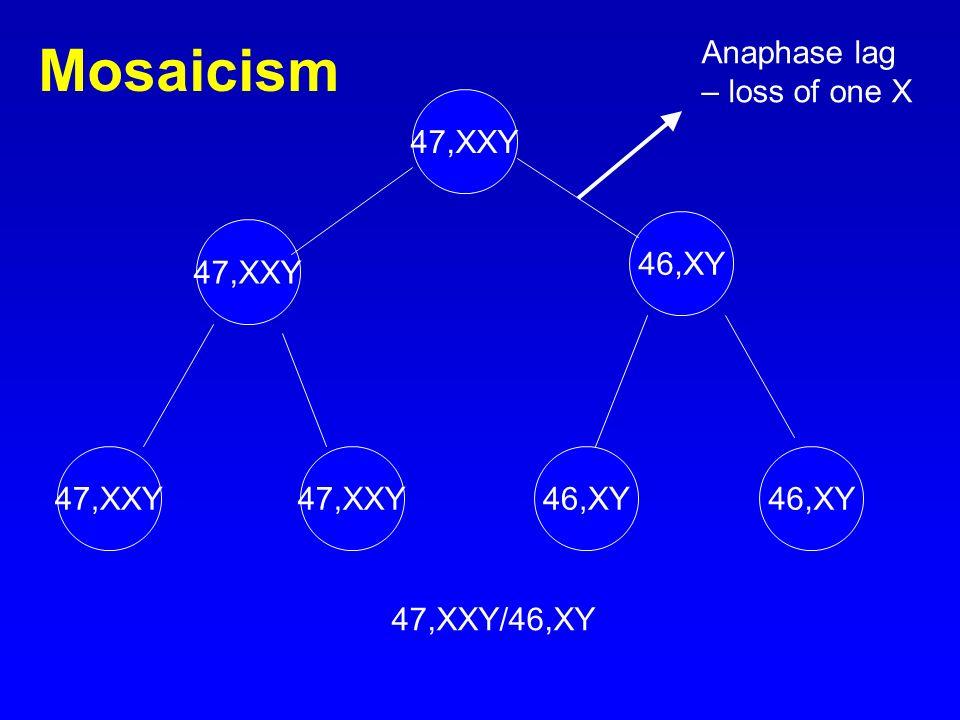 47,XXY 46,XY 47,XXY 46,XY Anaphase lag – loss of one X 47,XXY/46,XY Mosaicism