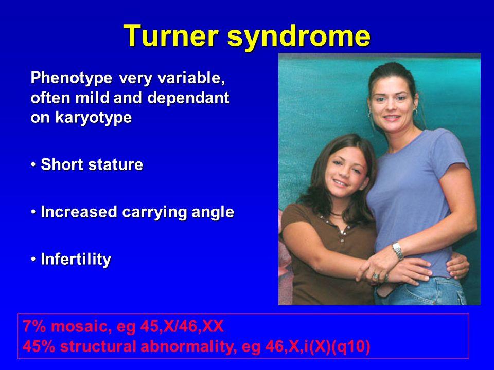 Turner syndrome Phenotype very variable, often mild and dependant on karyotype Short stature Short stature Increased carrying angle Increased carrying