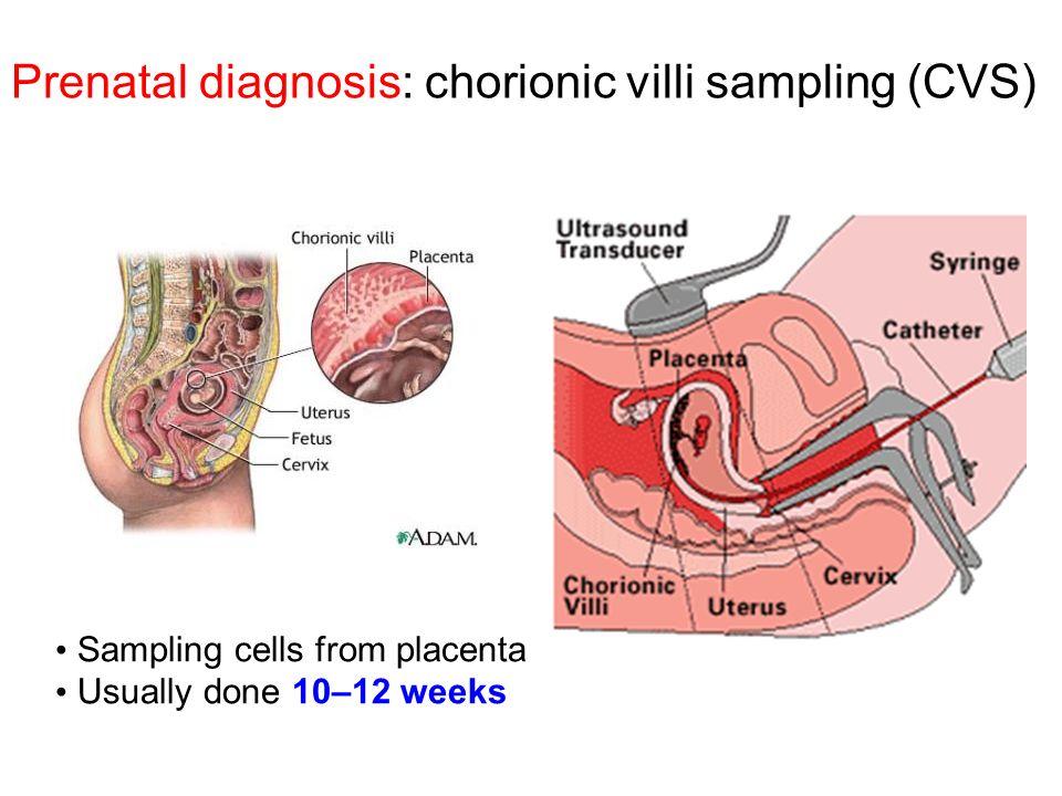 Prenatal diagnosis: chorionic villi sampling (CVS) Sampling cells from placenta Usually done 10–12 weeks