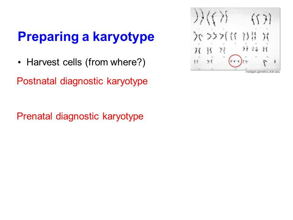 Preparing a karyotype Harvest cells (from where?) Postnatal diagnostic karyotype Prenatal diagnostic karyotype